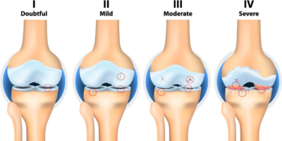 Recent advances in physiotherapy for OA knee with current evidence based studies