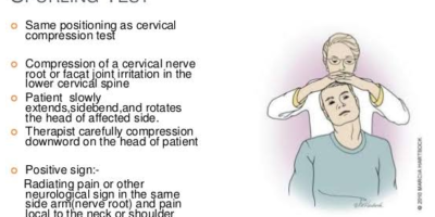 Cervical spine special tests